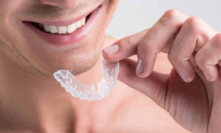 Getting braces as an adult what to expect - Notting Hill Dentist Number 18 Dental